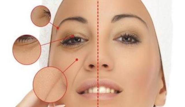 Cara menghilangkan kantung mata secara alami