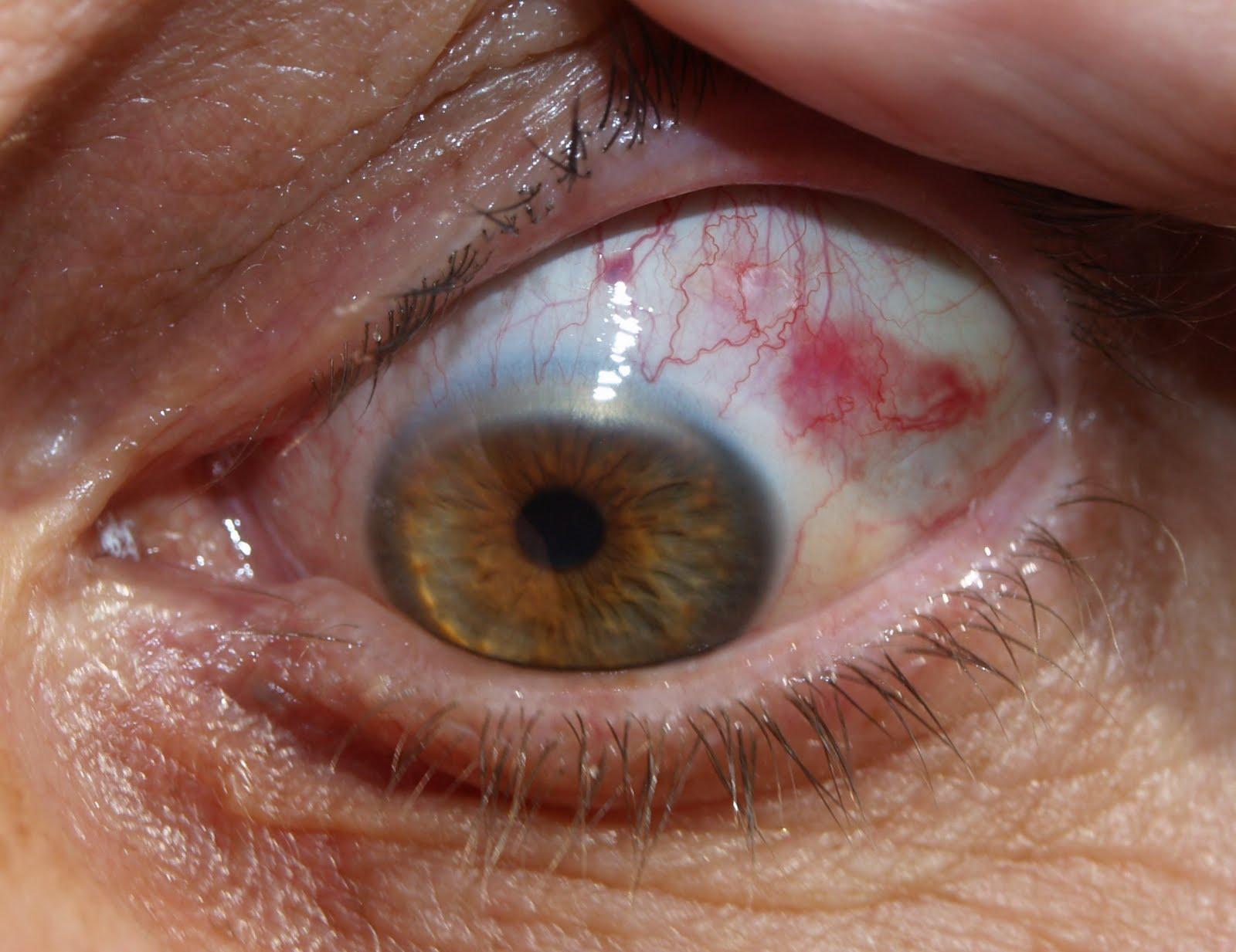 vlek voor oog en hoofdpijn