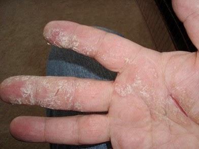 Dry/Flaky Skin