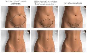 Retirar a gordura de nádegas a homens
