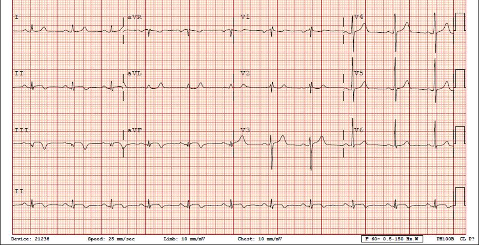 Другой наиболее частой причиной развития инфаркта миокарда у детей являются врожденные аномалии развития коронарных