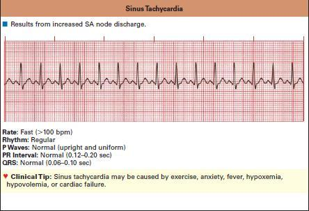 The normal heart rate in the average adult ranges from 60?100 beats/min.