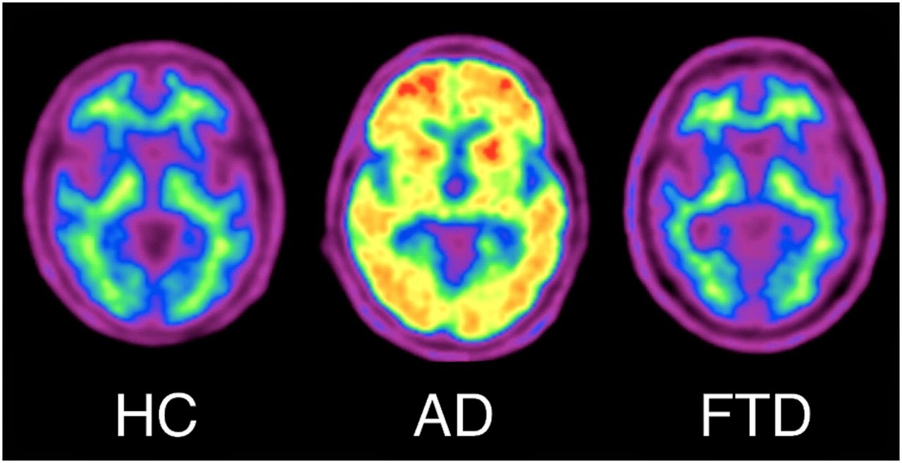 18F-florbetaben PET images of healthy aging (HC), AD, and frontotemporal dementia (FTD). 18F-florbetaben images show nonspecific white matter retention in healthy elderly individual, cortical and striatal binding in patient with AD, but no cortical binding in patient with frontotemporal dementia.