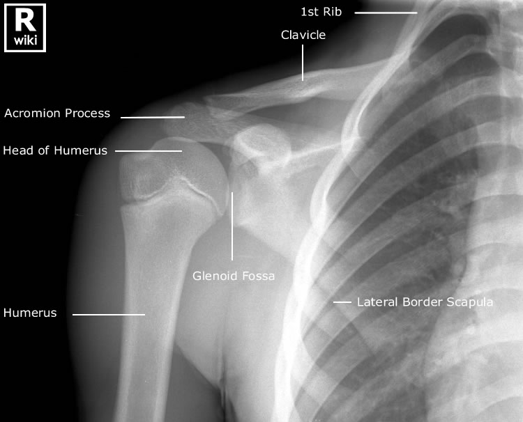 Radiographic anatomy of Paediatric Shoulder - Radiology Imaging