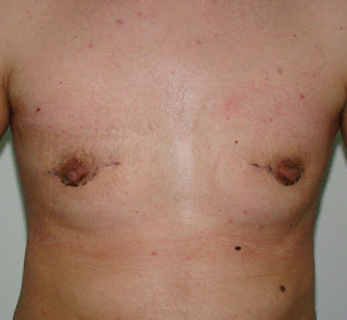 Outcome one month after surgery