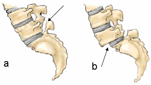 Buy	l5 spondylolisthesis symptoms