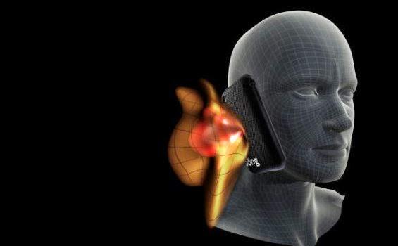 Radiasi Ponsel Menyebabkan Tumor Otak ?