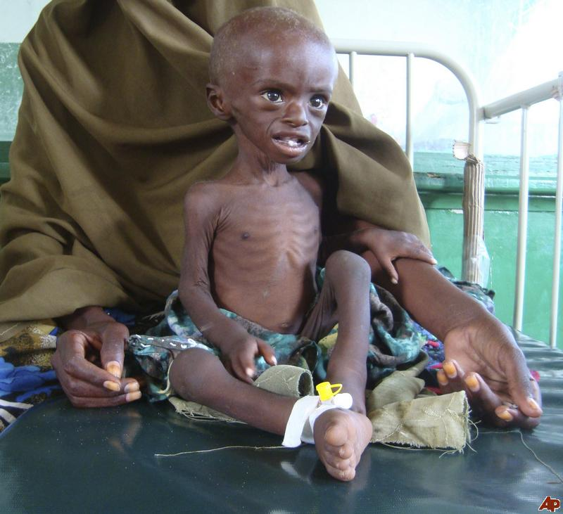 in somalia  3 7 million people