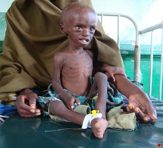 http://4.bp.blogspot.com/-5C9xKTeAy-o/Tjpe3OHfaxI/AAAAAAAAA8s/xu48p7XZ1gw/s1600/somalia%2Bfamine.jpg