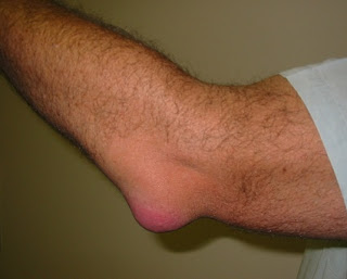 Elbow Bursitis illustrating Swollen Elbow Joint