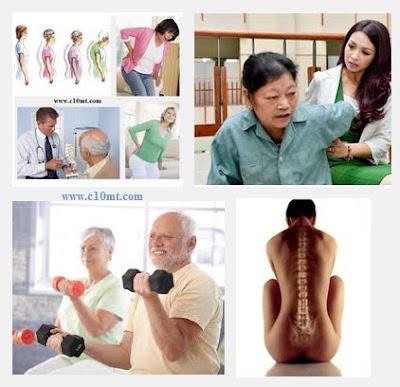 Nguyên nhân gây bệnh loãng xương ở tuổi mãn kinh