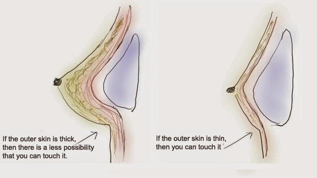 post pubescent breasts