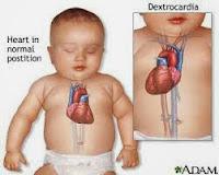 Obat Herbal Jantung Bocor Pada Anak