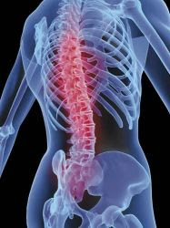 Hasil gambar untuk penyakit kanker di tulang rusuk