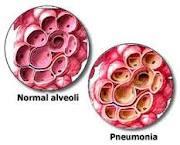 Askep Anak Pneumonia