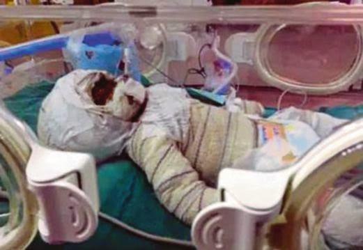Bayi Kembar Terbakar Doa Buat Alisya Syafira