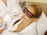 Manfaat Menghilangkan Noda Hitam Bekas Jerawat Dengan Laser Wajah Agar Terlihat Cantik Mempesona