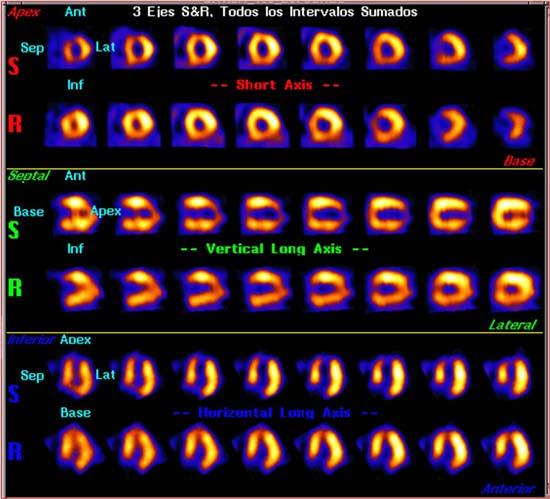 Medicina nuclear en cardiología