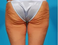 side effects of butt implant