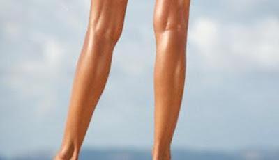 cara menghilangkan varises di kaki