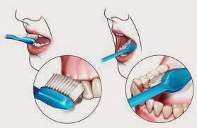 Habits Of Inviting Dental Plaque And Cause Cavities