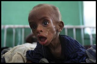 somalia, bantu, muslim, saudara, islam, starving