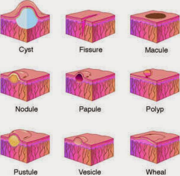 Macule, Papule, Nodule, Plaque, Wheal, Vesicle,…! What!? | Live ...