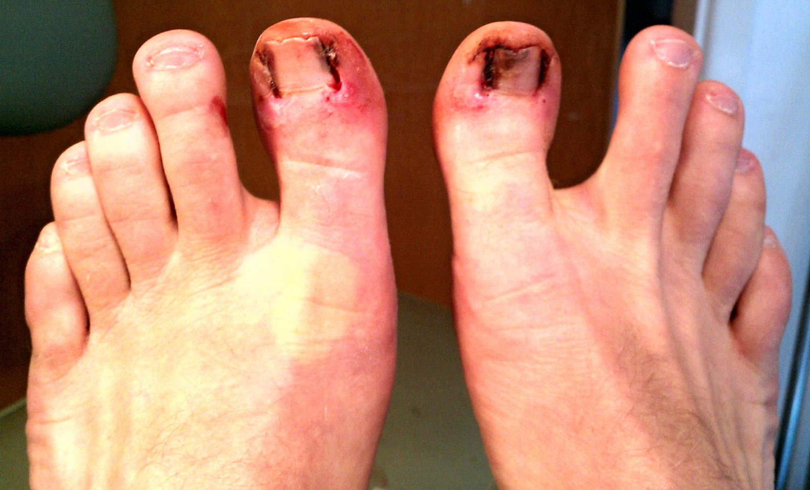 Erythromelalgia in Toes Info (Not CRPS Complex Regional Pain Syndrome)