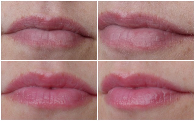 Psoriasis of the lips 3