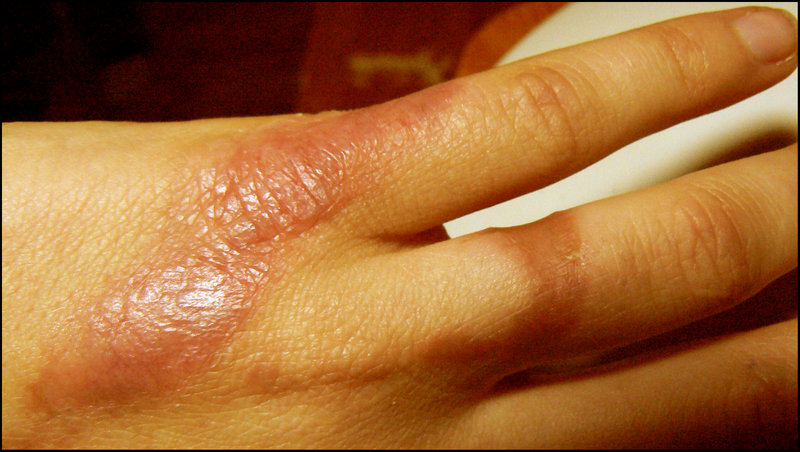 Home Remedies For Burn Ayurveda Upay