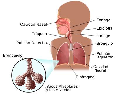 Síndrome de dificultad respiratoria del recien nacido