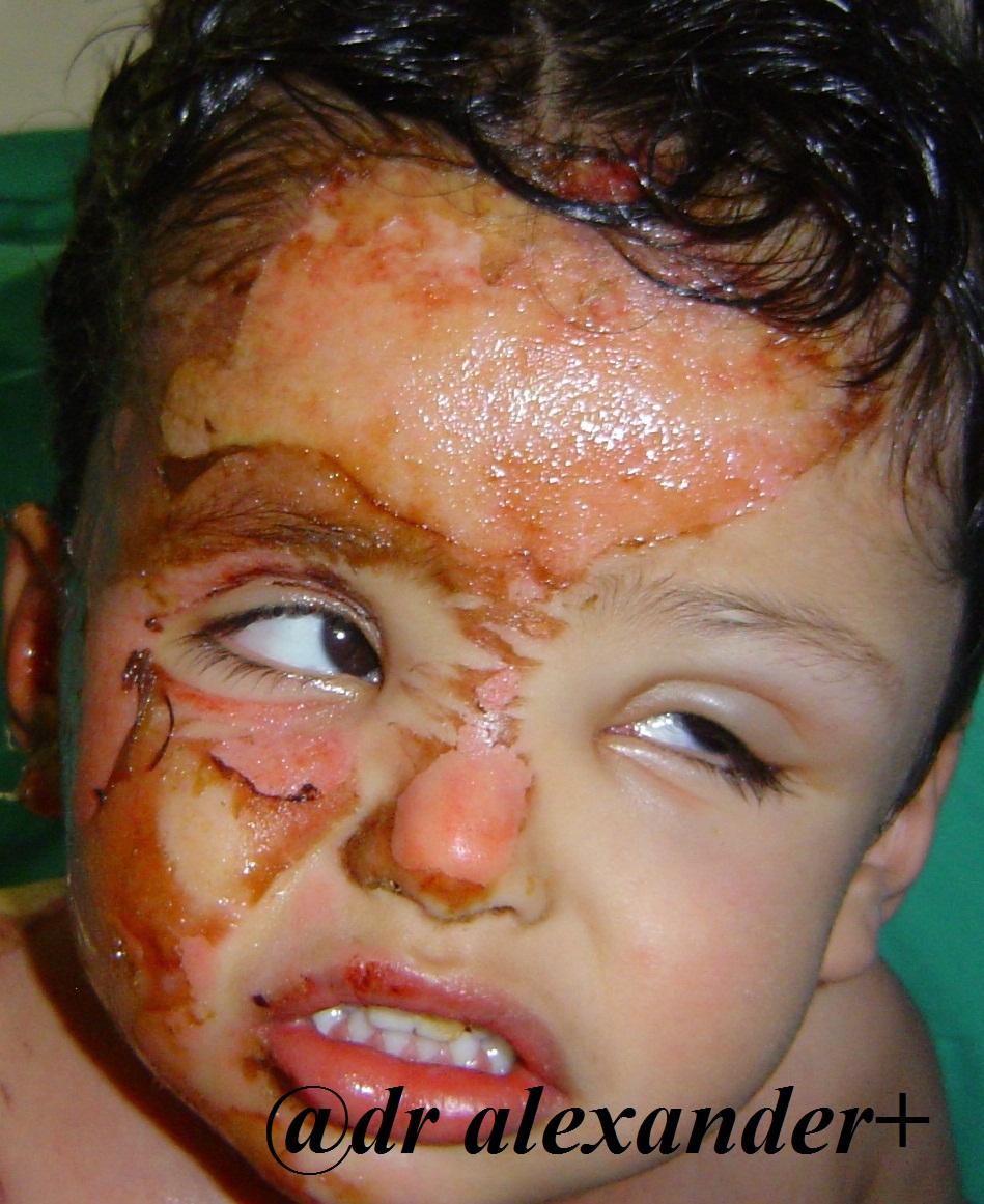 About facial plastic surgery