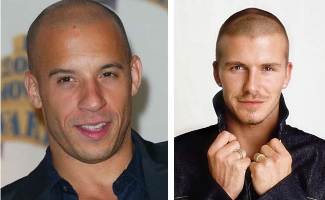 Mens Haircuts That Hide Male Pattern Baldness Hairstyle