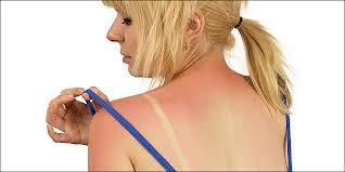 ηλιακό έγκαυμα,αντιμετώπιση,υγεία