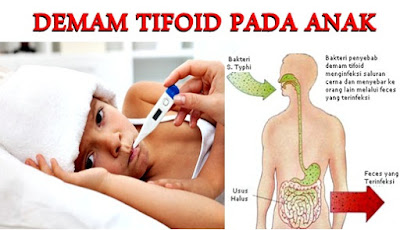 Obat Tradisional Demam Tifoid Pada Anak