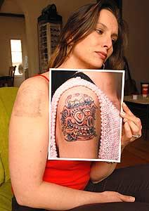 Como Remover Tatuagens