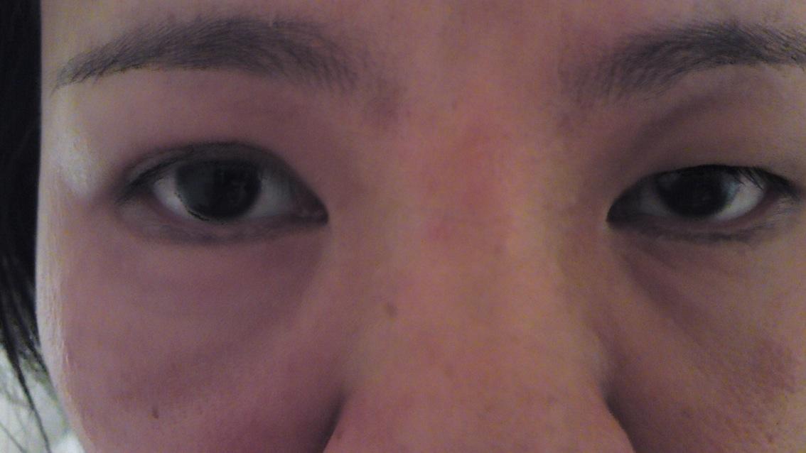 Puffy facial skin need more