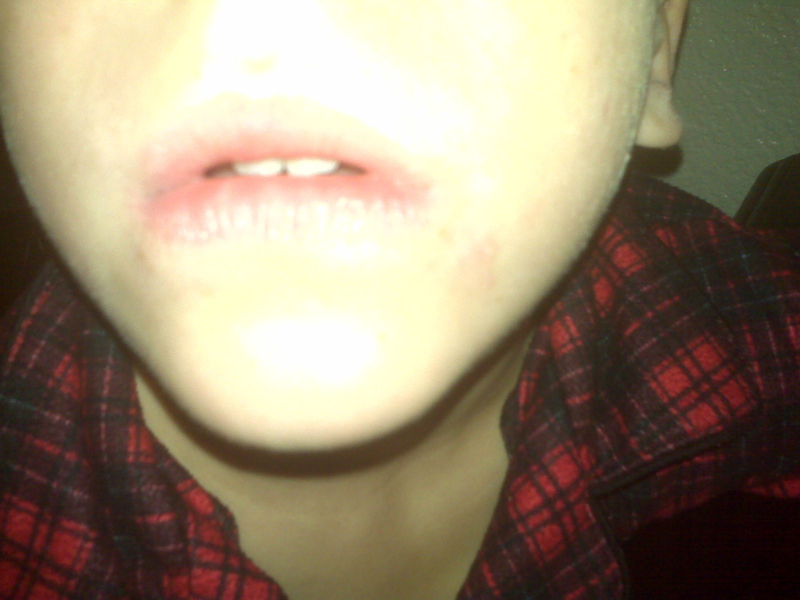 Rash On Corner Of Mouth - Doctor answers on HealthTap