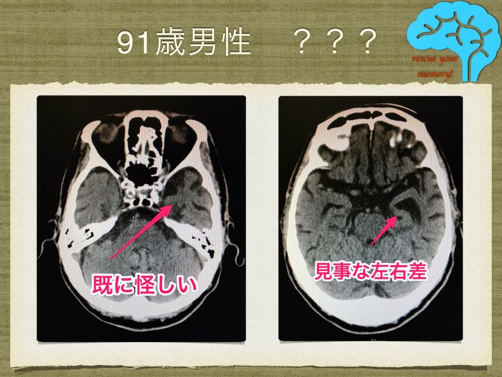 91歳男性 脳萎縮に左右差 頭がわんわん