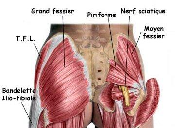 sciatalgie gauche