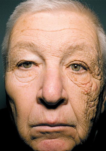 Os efeitos da exposição prolongada da pele ao sol