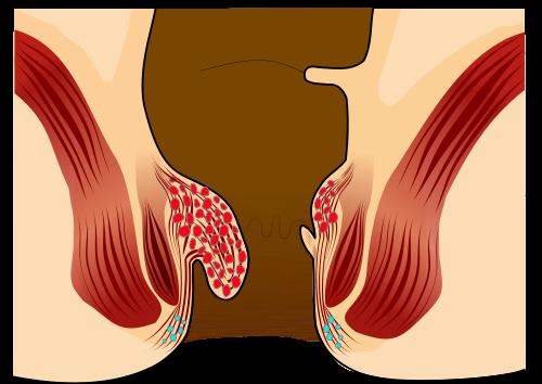 Image Pencegahan dan pengobatan herbal penyakit wasir