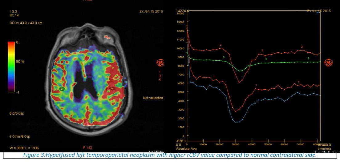 MR Perfusion Imaging in Acute Ischemic Stroke