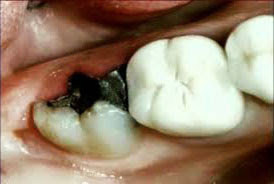 Remedios-caseros-para-dientes-picados