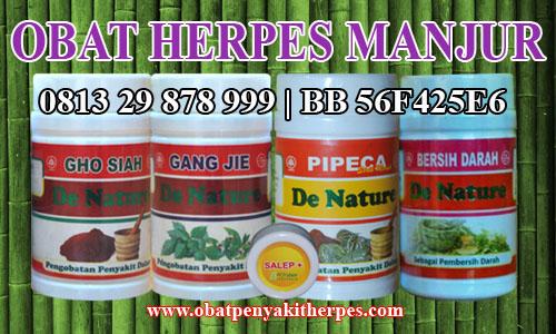 Obat Penyakit Herpes Alami
