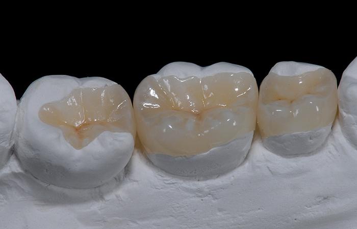 Restaura es dentais indiretas inlay onlay crown for Porcelana en ingles