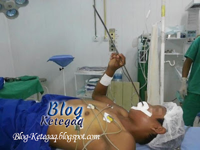 pesakit di hospital