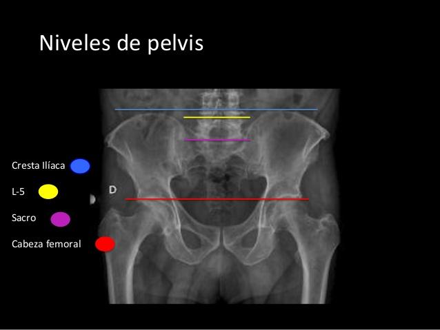 Anatomía radiológica – Abdomen y pelvis : Anatomía del Intestino ...