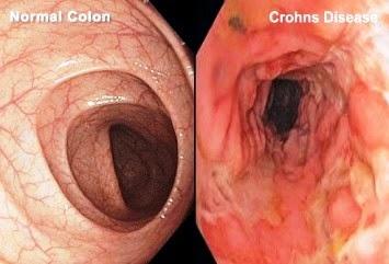 Crohn's Disease, An Inflammatory Bowel Disease