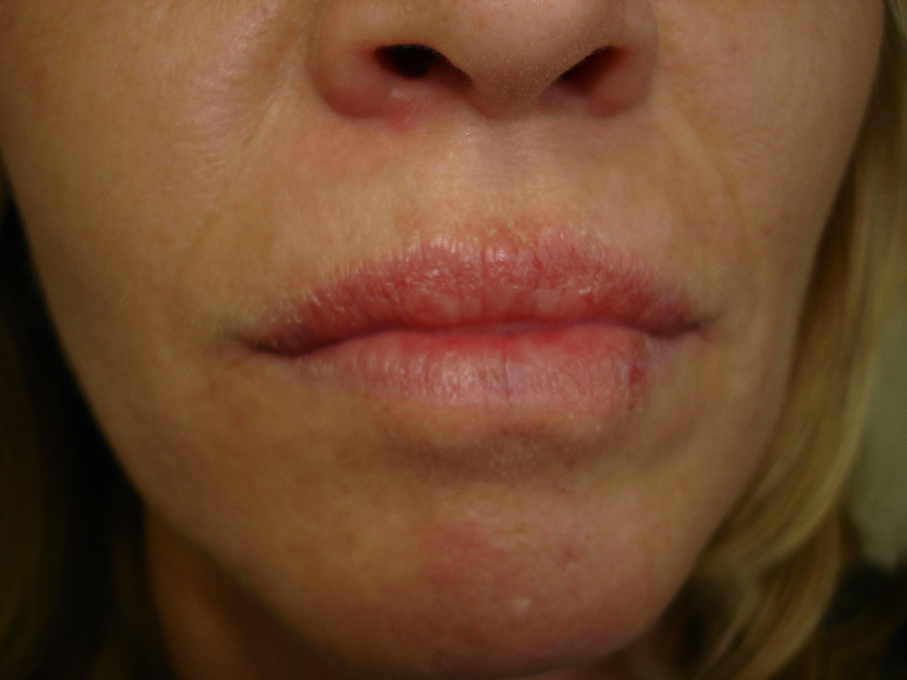 eczema on lip